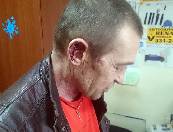 В схватке с налетчиками пострадал таксист из Бердска